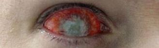 Geile Kontaktlinsen